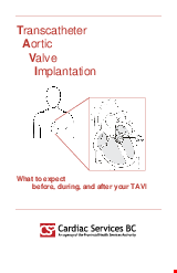 PDF Thumbnail for Transcatheter Aortic Valve Implantation - What to Expect
